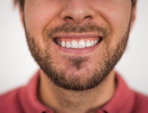 Tandblekning Hemma – Mina bästa tips + egen erfarenhet